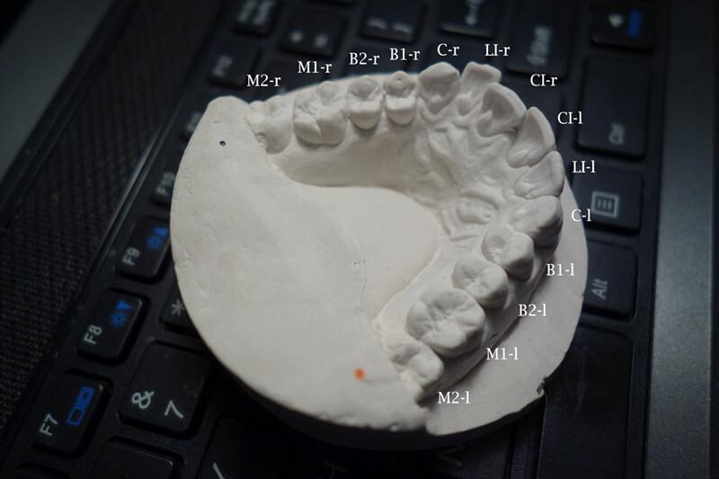 ortodoncia impresion 3d 6
