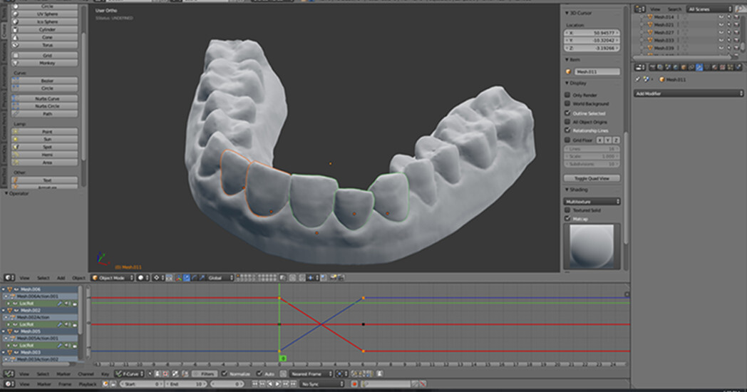 ortodoncia impresion 3d 5