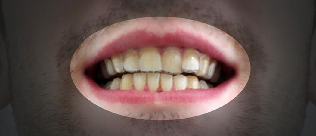 ortodoncia impresion 3d 2
