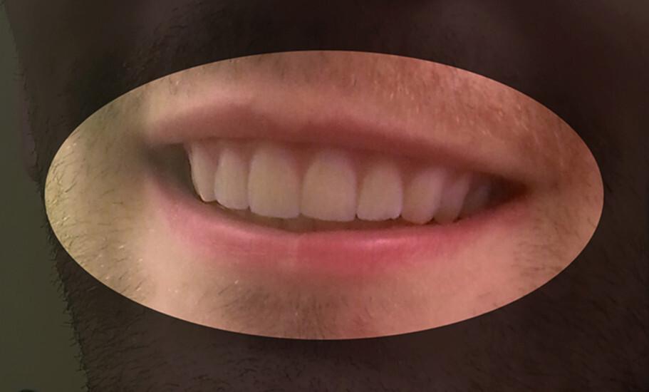 ortodoncia impresion 3d 3