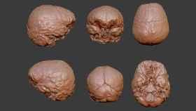 Imágenes del cerebro reconstruido de Descartes.