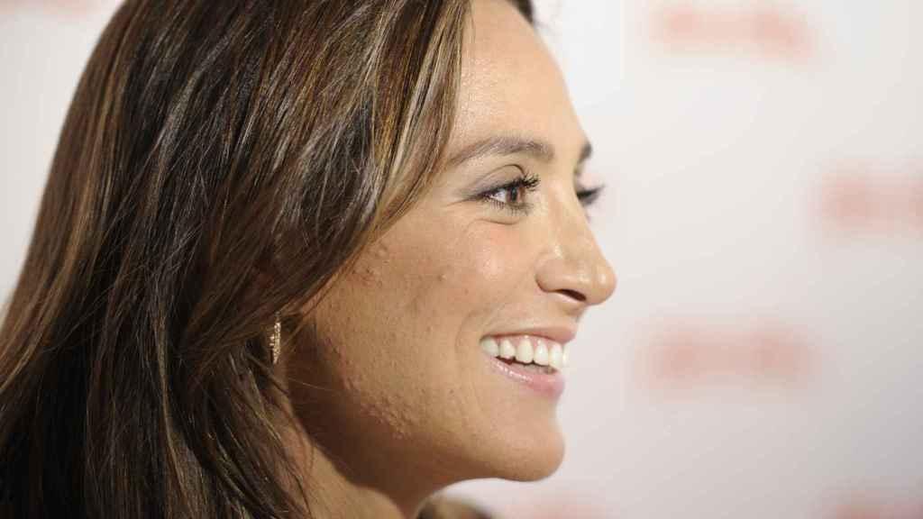 Tamara Falcó ha tenido episodios de acné.