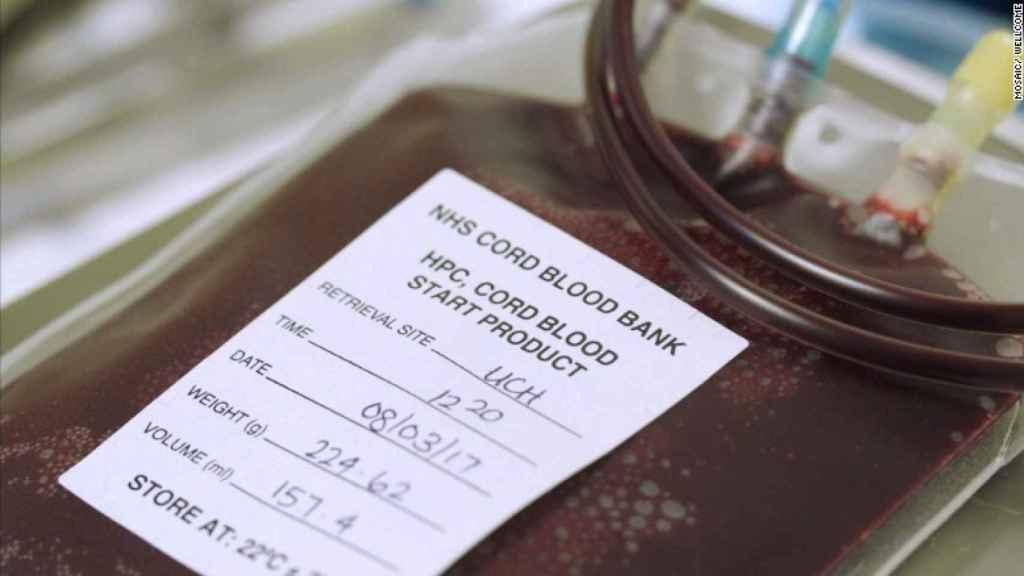 Una muestra de sangre de cordón umbilical