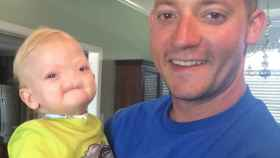 Muere a los dos años Eli Thompson, el bebé que nació sin nariz