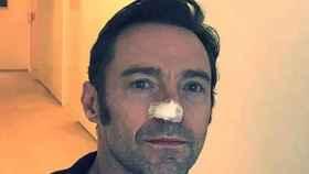 El actor Hugh Jackman tiene cáncer de piel