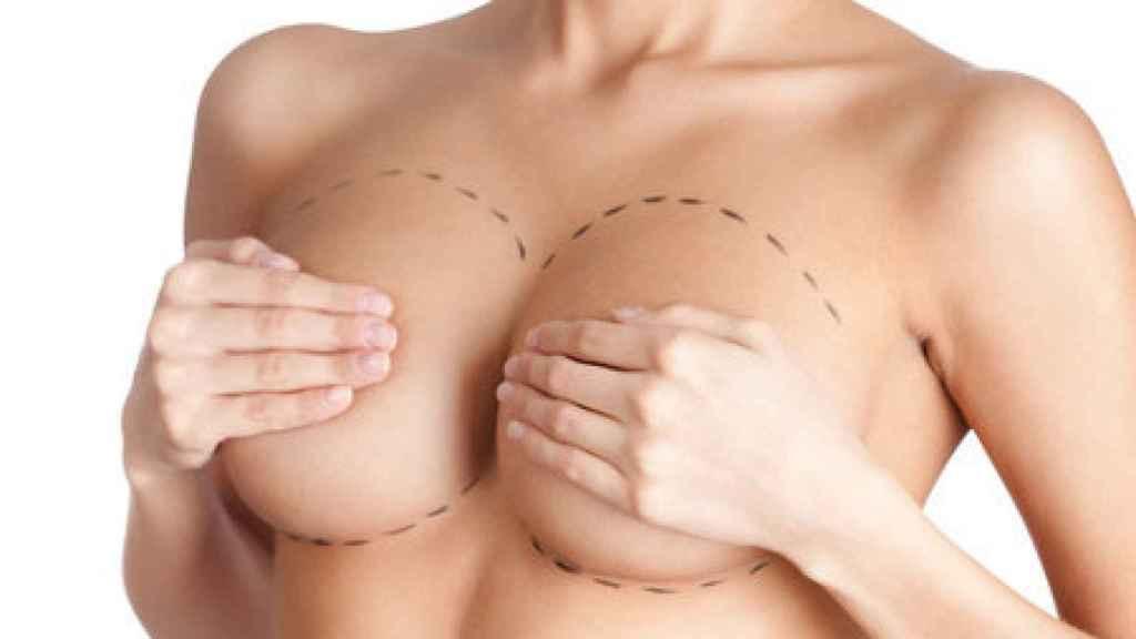Mujer preparada para ser operada del pecho.