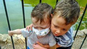 La piel le duele a Abel, la bolsa se le llena enseguida porque el niño siempre ha tenido muchísimas pérdidas.