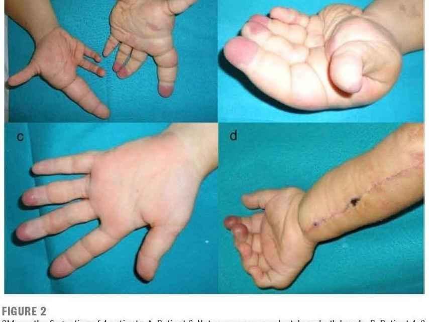 Dos pacientes con macrodactilia, un con las puntas de los dedos deformada y un operado vascularmente.