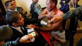 Uno de los heridos en el incidente en el Parlamento venezolano