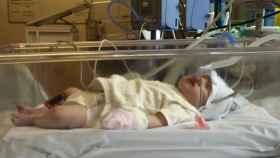 La bebé cuando estaba ingresada en el hospital.