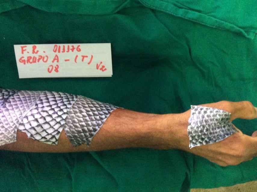 Uno de los pacientes tratados con piel de pescado.