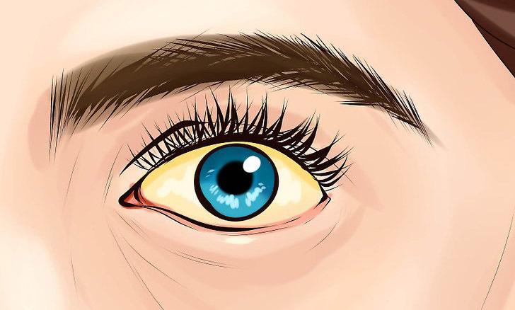 cancer de pancreas ojos amarillos
