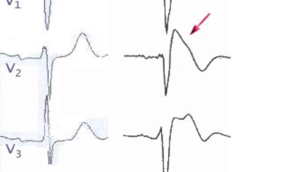 La aleta de tiburón que señala la presencia del Síndrome de Brugada.