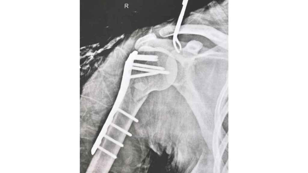 Radiografía del hombro de Amarna Miller tras la operación.