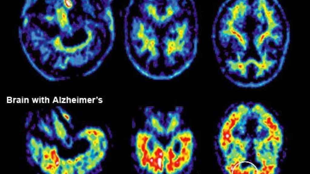 Una resonancia magnetica de un paciente con alzhéimer.