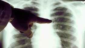 Imagen de archivo de un cáncer de pulmón.