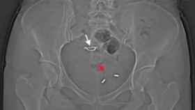 Una radiografía muestra el DIU en el interior de la vejiga de la paciente.