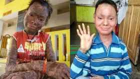 Shalini Yadav antes de venir a Málaga y un mes después de iniciar el tratamiento.
