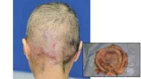 La paciente tras el injerto. Abajo, el cuero cabelludo arrancado.