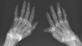 La radiografía de las manos de la mujer.