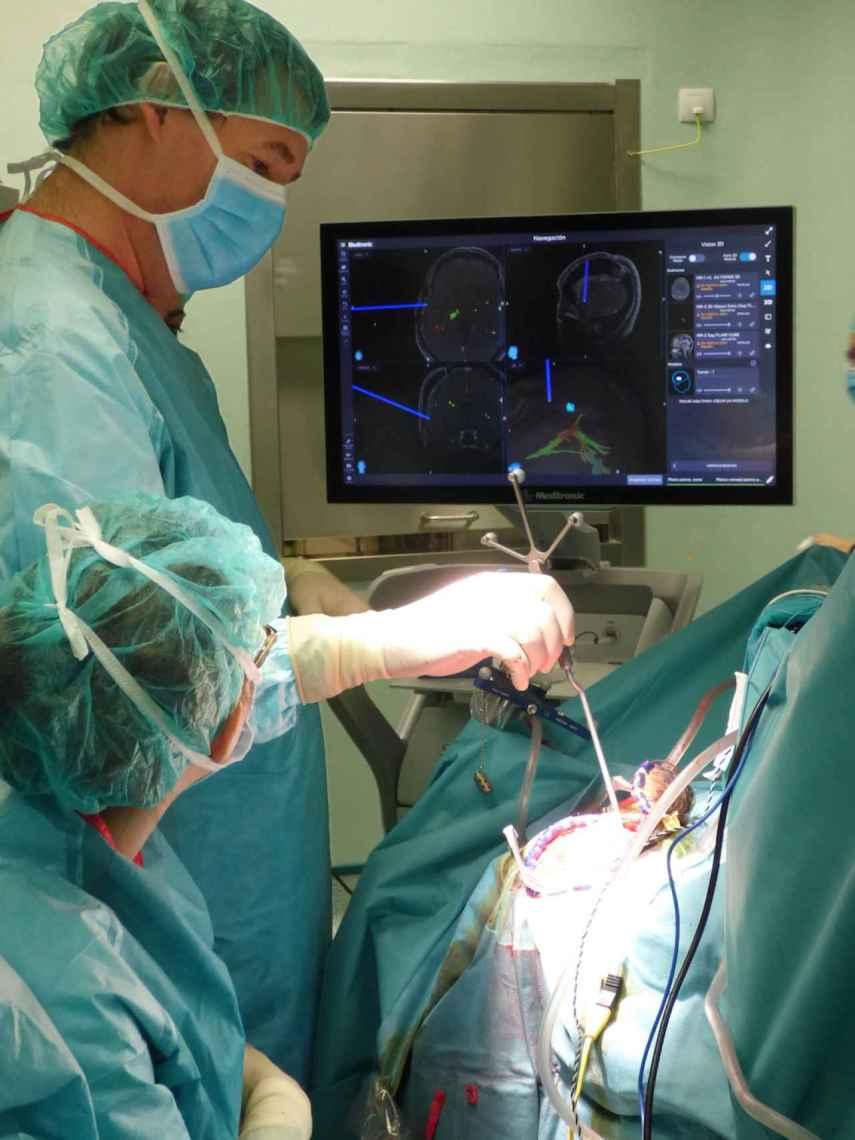 Los neurocirujanos pueden navegar por el cerebro del paciente en tiempo real