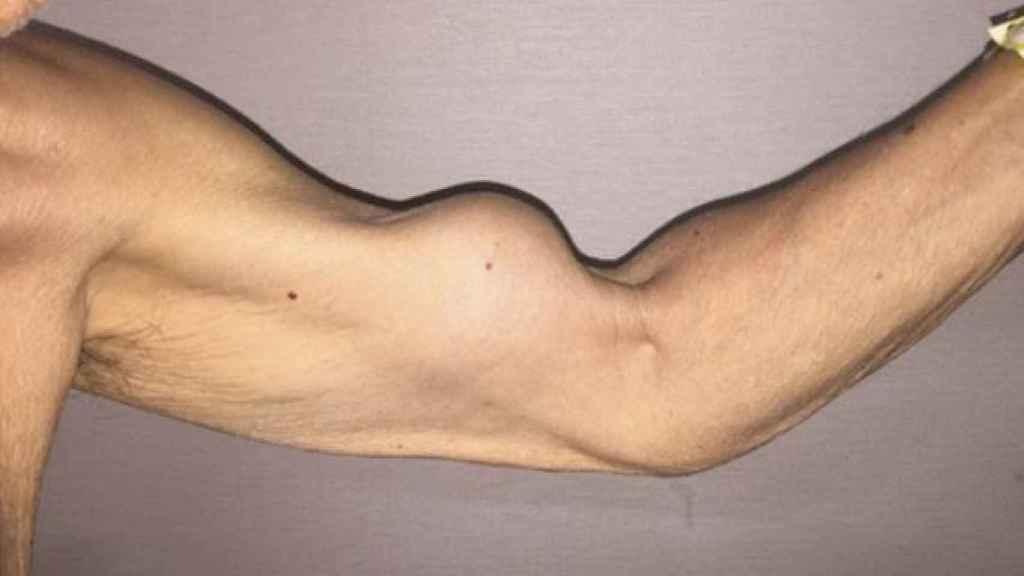 ¿El brazo de Popeye? Se llama así, pero en sentido figurado.