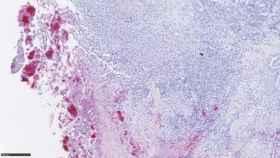 Tejido cancerígeno al microscopio.