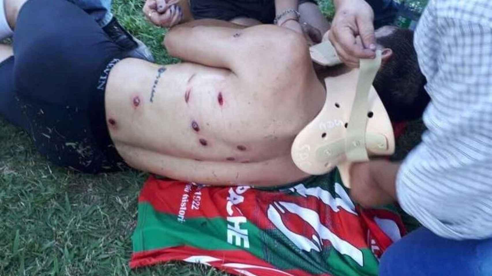 Un futbolista, tirado en el suelo tras la represión.