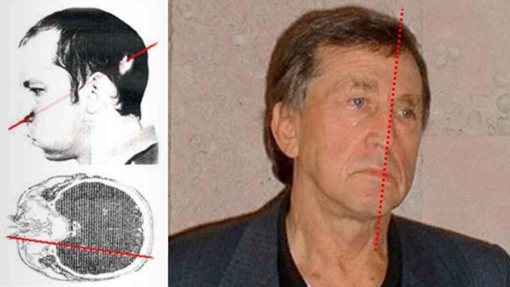 Anatoli Bugorski tras del accidente, y décadas después: la parte izquierda de su cara no ha envejecido.