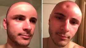El antes y el después de Cade Huckabay.