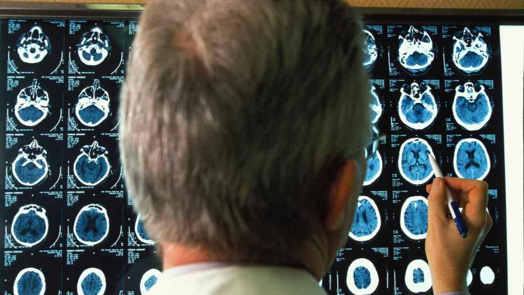 Un médico revisa imágenes del cerebro de un paciente de alzhéimer.