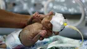 Un bebé prematuro en un hospital de Sanaa. En Yemen un 30% de los recién nacidos son prematuros