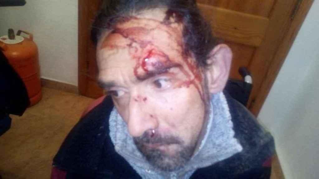 El valenciano Enrique Marí, de 43 años, recibió una paliza por parte de dos hombres el pasado sábado.
