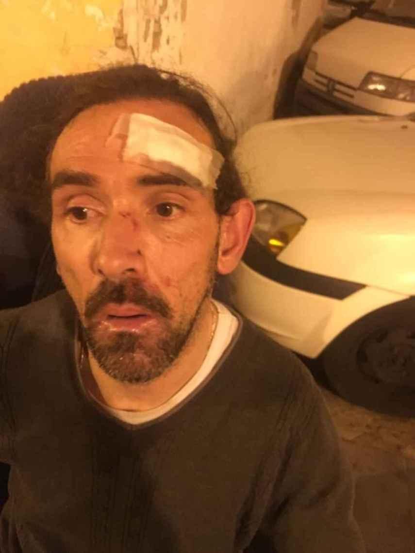 Enrique Marí, victima de la agresión, tras recibir atención médica en el Hospital Clínico de Valencia.