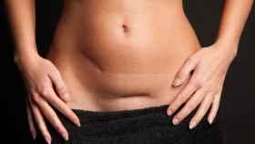 Una mujer con la cicatriz de una cesárea.