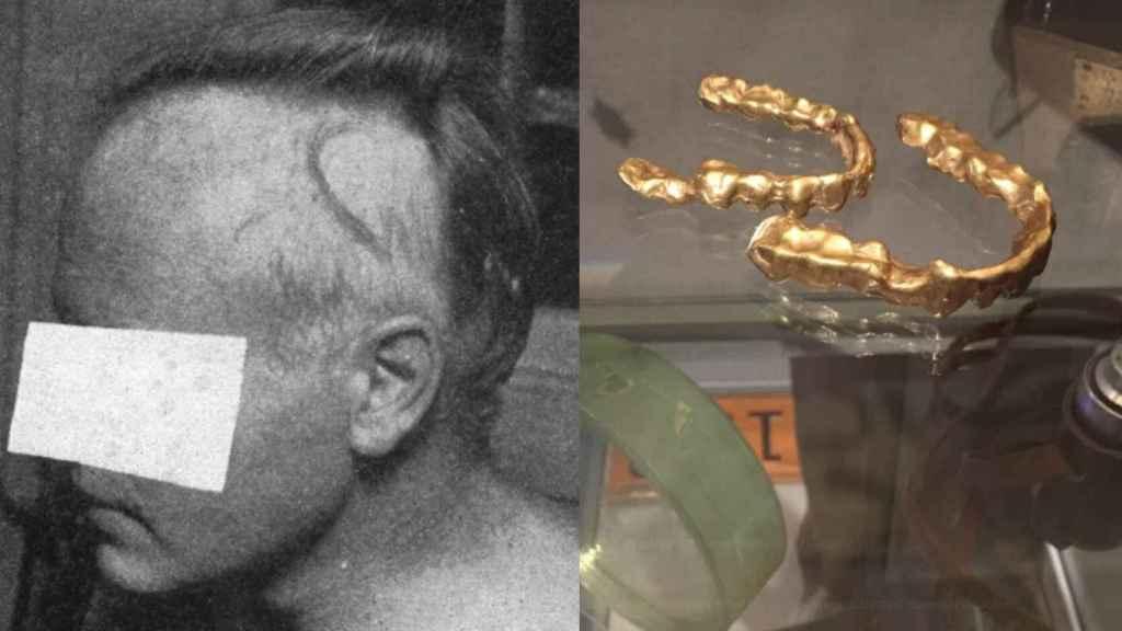 Alvin Graves, un mes después del accidente, junto a las fundas de oro que se usaron para contener la radiación.