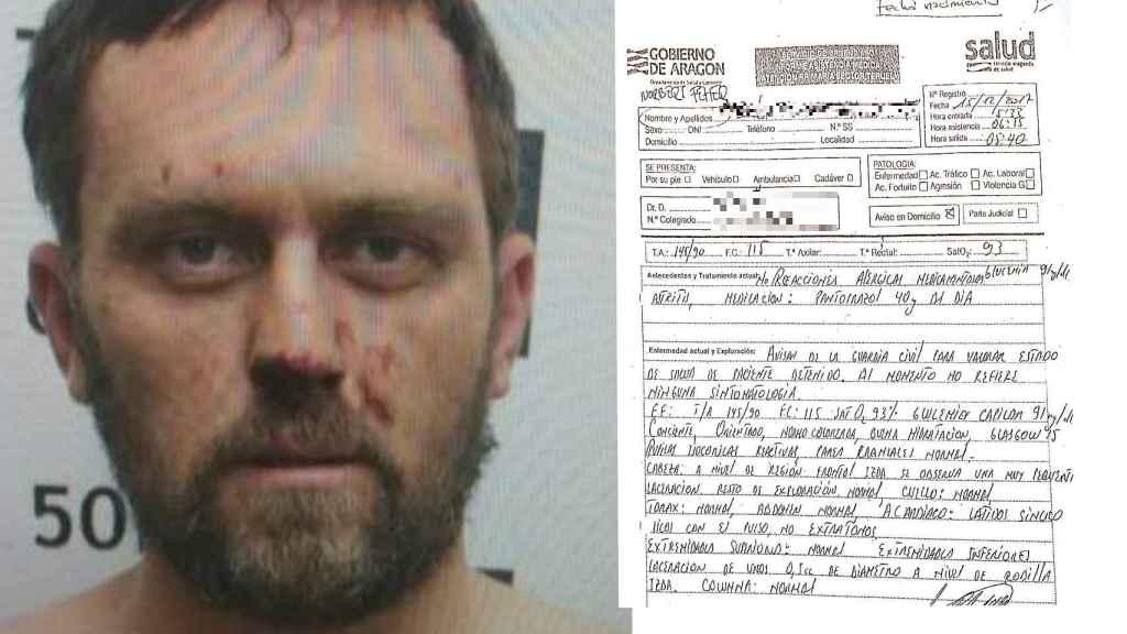 El informe médico tras la detención de Igor 'el Ruso'
