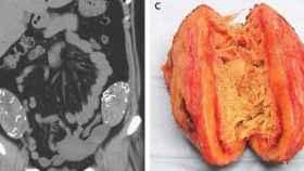 La imagen radiológica y una de las esponjas extraídas.