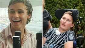 Sam Ballard, antes y después del accidente.