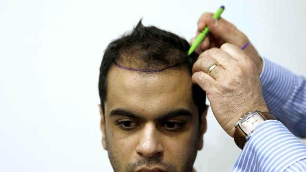 Un doctor examina a un paciente que someterá a un implante de pelo en una clínica tuca