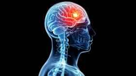 Representación de la estimulación cerebral.