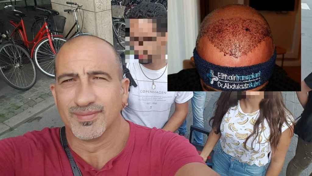 Andrés se quedó calvo con 45 años y, a los 51, se injertó en Estambul.