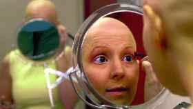 Una mujer calva por la quimioterapia.