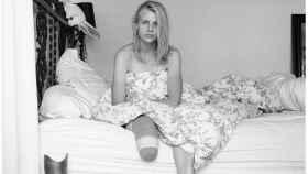 La modelo Lauren Wasser perdió una pierna después de sufrir síndrome de shock tóxico por un tampón.