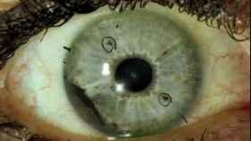 Melanoma ocular, el raro cáncer de ojo que está arrasando en EEUU