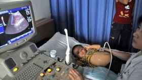 Un niño pequeño tratado de piedras del riñón en un hospital de Wuhan, China.