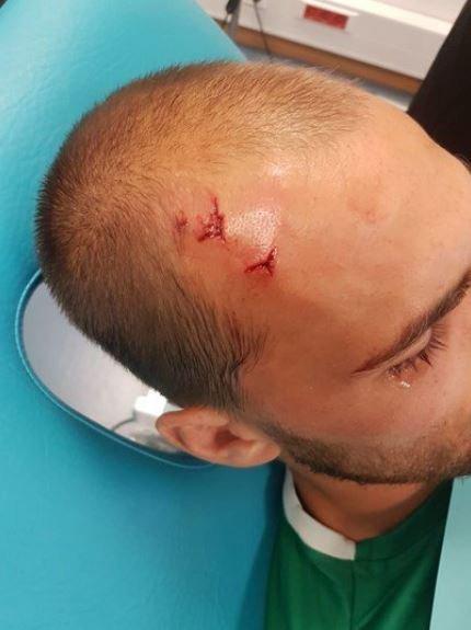 Bas Dost, herido en los incidentes con los ultras. Foto: Twitter (@chirichampions).