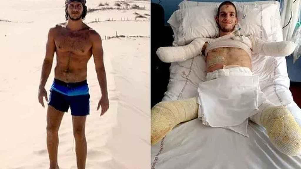 Davide Morana antes y después de la meningitis.