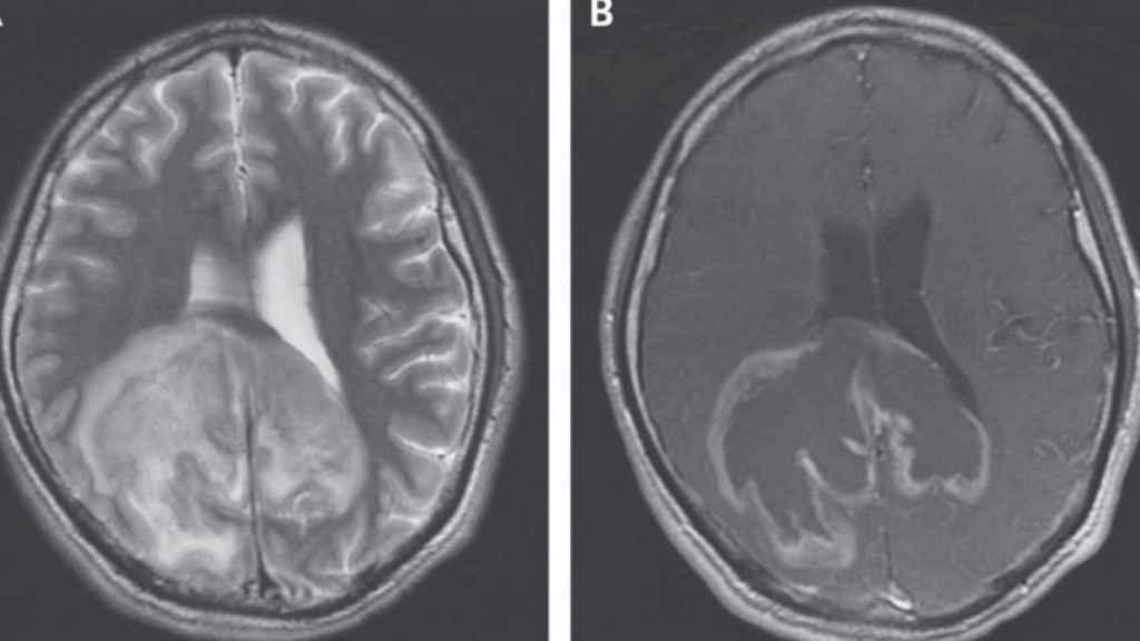 Una radiografía del cerebro en la que se ven parásitos.