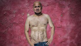 Luis Rodríguez Guerrero mostrando las cicatrices de los cinco trasplantes de riñón que ha superado durante su vida.